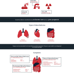 mesothelioma and asbestos infographic